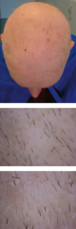 CG428 Chemoterapy Hair loss